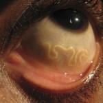 Lekarze usuwają 19 cm pasożyta z oka mężczyzny [NSFL]