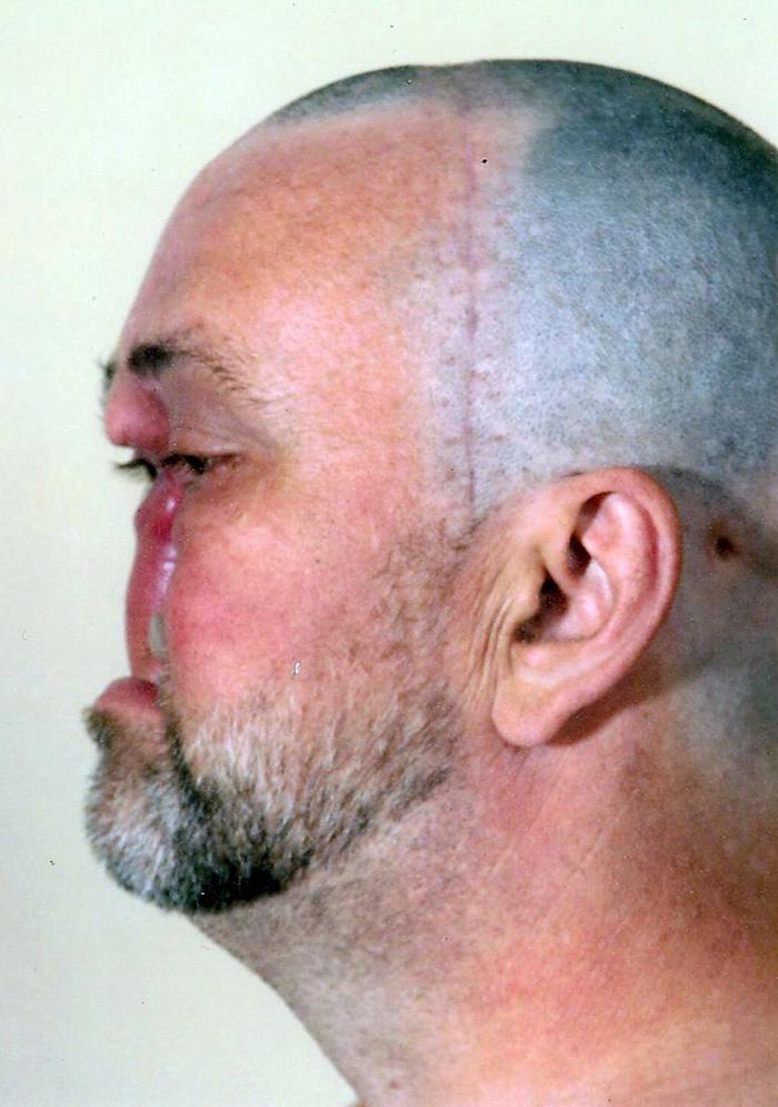 Donnie Fritts tuż po operacji usunięcia nowotworu.