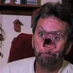 Mężczyzna z dziurą w twarzy