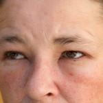 Czy można mieć alergię na własny pot i łzy? Poznajcie historię dziewczyny, która na nią cierpi