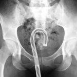 Najdziwniejsze przedmioty w ciałach amerykańskich pacjentów w 2016 roku